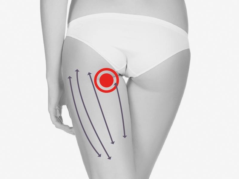 Podrażnienie prostowników uda – zabieg przy użyciu fali uderzeniowej