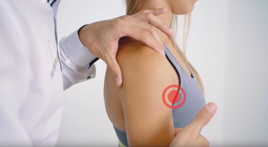 Leczenie naderwania mięśnia - laser wysokoenergetyczny