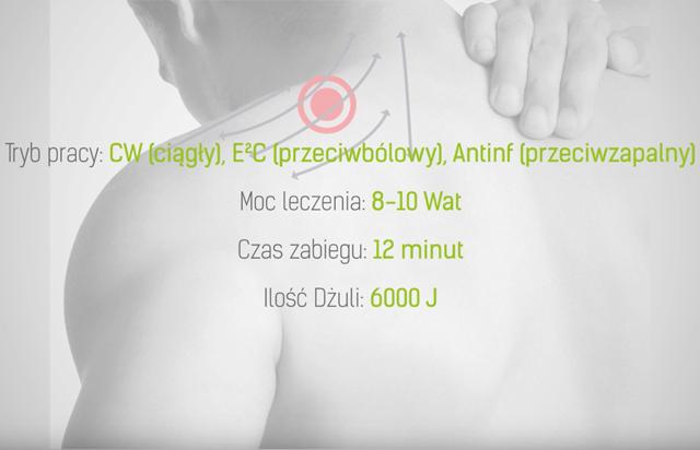 Naderwanie mięśnia - parametry leczenia laserem wysokoenergetycznym