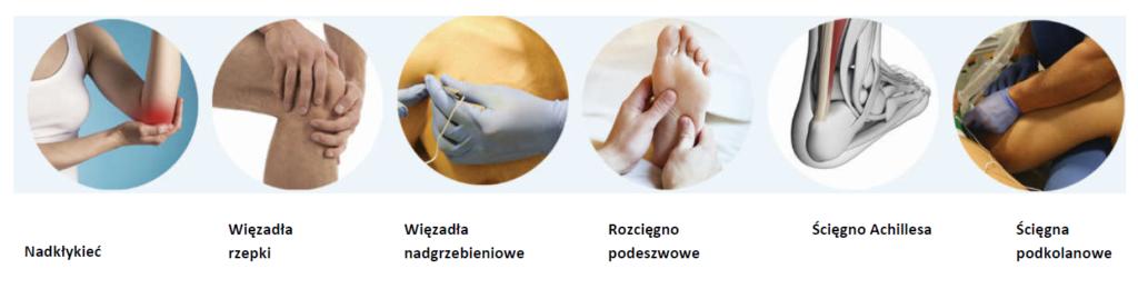 Tendinopatie - rodzaje schorzeń ścięgien