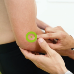 Leczenie łokcia tenisisty z wykorzystaniem terapii TECAR