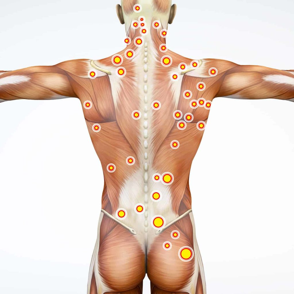 Punkty spustowe - rozmieszczenie na ciele