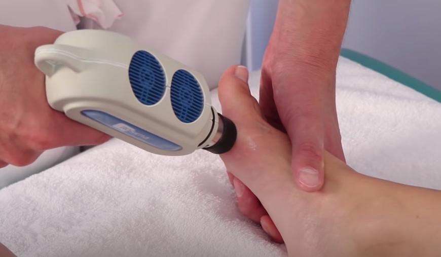 Nieinwazyjna metoda leczenia haluksów - fala uderzeniowa
