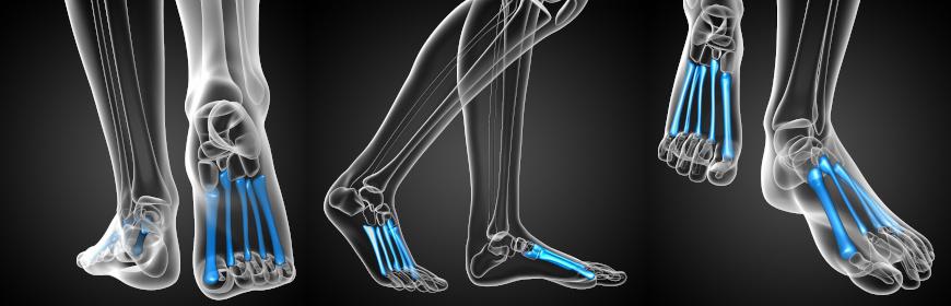 Kości śródstopia