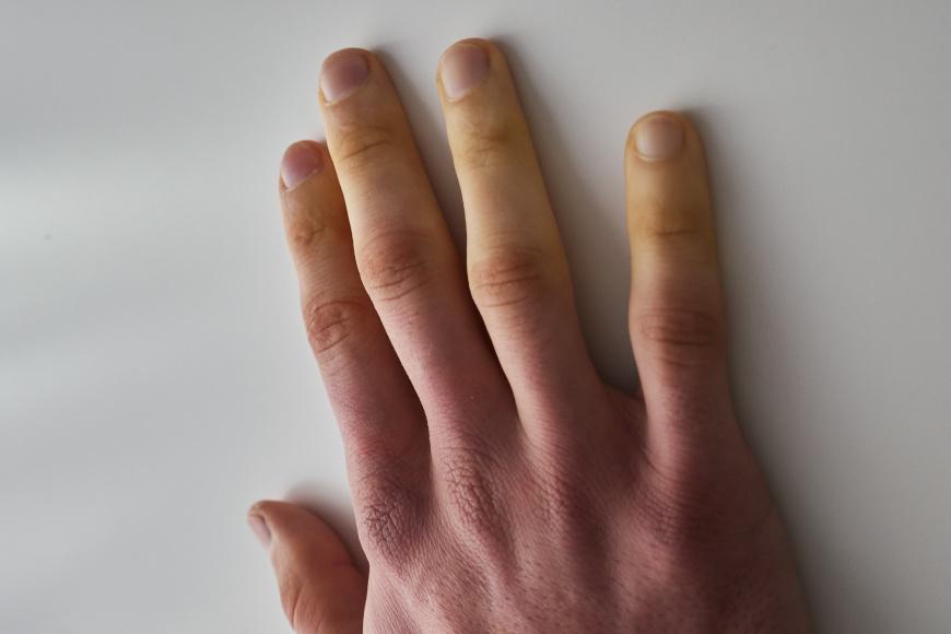 Blednięcie palców - objaw Raynauda towarzyszący chorobie i zespołowi