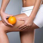 """Stopnie cellulitu i skuteczne zabiegi na usuwanie """"skórki pomarańczowej"""""""